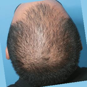 What is finasteride approved for?